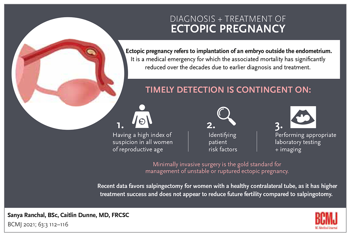 DIAGNOSIS + TREATMENT OF ECTOPIC PREGNANCY