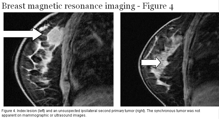Mri to detect breast cancer
