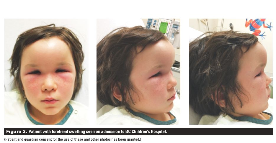 Forehead swelling in a 10-year-old male: A case report | British