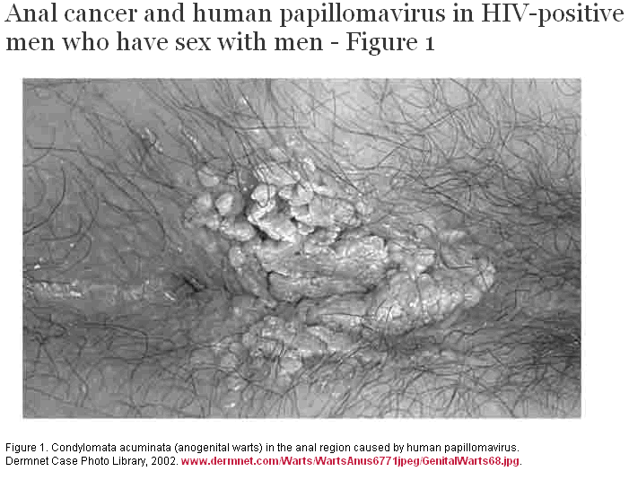 Anal sex and hpv