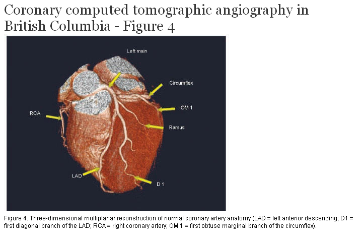 Coronary Computed Tomographic Angiography In British Columbia A