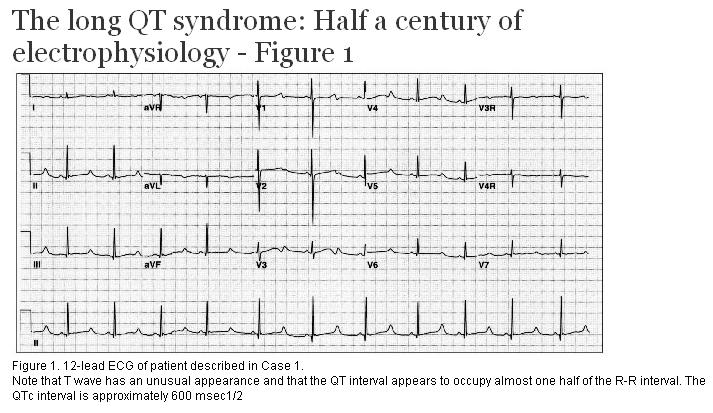 the long qt syndrome half a century of electrophysiology. Black Bedroom Furniture Sets. Home Design Ideas