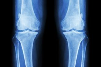 A knee X-ray