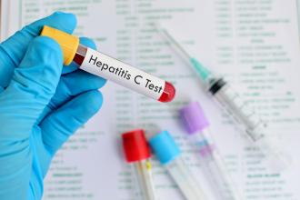 The revolutionary changes in hepatitis C treatment: A concise review