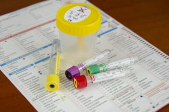 Online sexually transmitted infection testing offers many benefits