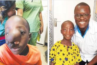 Neurosurgical supports, from BC to West Africa