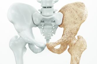 Questions in osteoporosis management