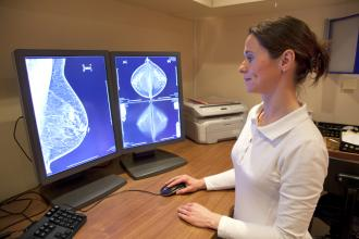 Coordination of radiological and clinical care for breast cancer diagnosis in BC