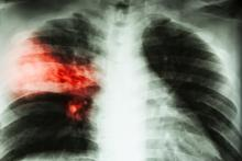 A chest X-ray of a patient with tuberculosis