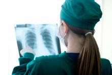 A doctor looks at an X-ray of a patient's lungs