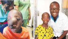 Samuel prior to the surgery and with Dr Alvin Nah Doe, a KBNF member and Liberia's sole neurosurgeon, who participated in Samuel's surgery and treatment.