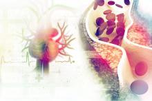 Cholesterol plague in an artery