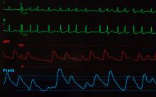 close up monitor showing atrial fibrillation