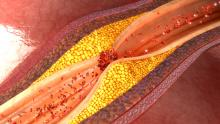 Close up of coronary artery plague/disease