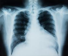 X ray of a lung with the right side filled with air