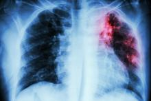 X-ray of pulmonary tuberculosis