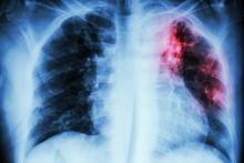 X-ray of pulmonary tuberculosis