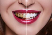 Woman Teeth before and after dental treatment. Teeth Whitening.