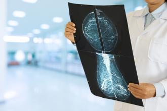 A doctor looks at X-rays of breasts.