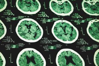 Traumatic brain injury in survivors of intimate partner violence