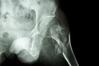 Benefits of accelerated surgery in patients with hip fracture