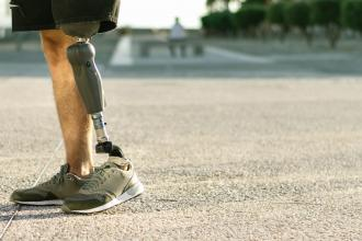 A person with a leg amputation walks with a prosthetic
