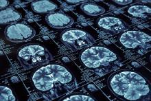 Magnetic resonance imaging of brain